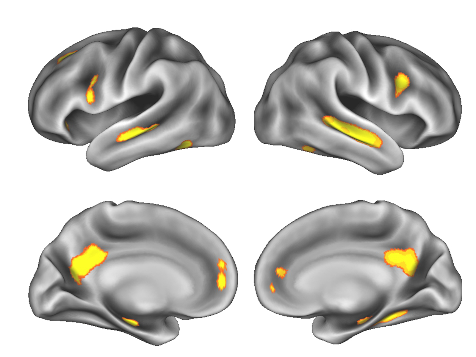 hight resolution of image of gray matter changes in the brain during pregnancy