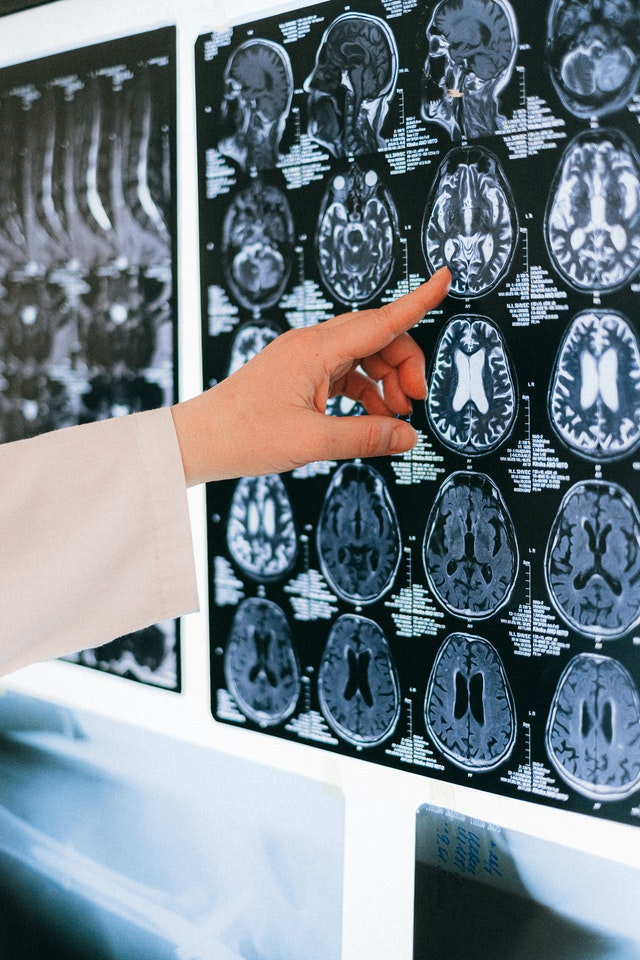 Initial Treatment Of Traumatic Brain Injury