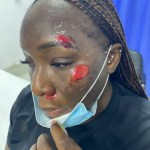 Lady Attacked While Jogging On The Lekki-Ikoyi Link Bridge
