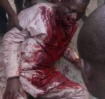 Unknown Gunmen Shoot Bauchi Auditor-General, Abduct Son