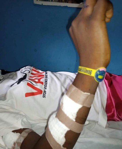See Photos As Woman Slashes Her 13-Year-Old Daughter With Razor Blade Over Theft In Bayelsa State