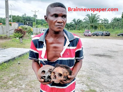 [Photo] Herbalist Arrested With 2 Human Skulls, Container Filled With Fresh Human Blood Uncovered