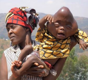 See Photos As Dad Calls His Deformed Baby Devil Spawn, Tells Wife To Kill Him
