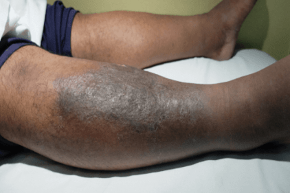 200,000 Nigerians Die Of Thrombosis Annually – Expert Reveals