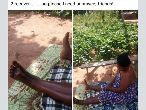 Man Asked To Pray For His Sister After Being Bitten By Poisonous Snake