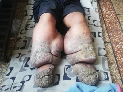 Man Slowly 'Turning Into Stone' After Worms Got His Legs Swollen