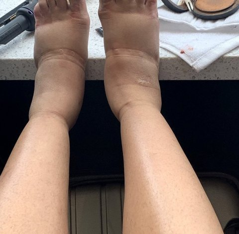 Shocking Photo Shared By Cardi B Of Her Swollen Feet Caused By Cosmetic Surgeries