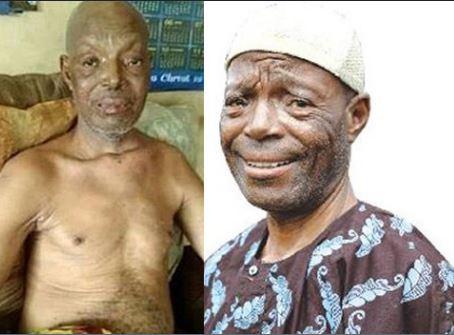 Veteran Yoruba Actor, Alabi Yellow Is Dead