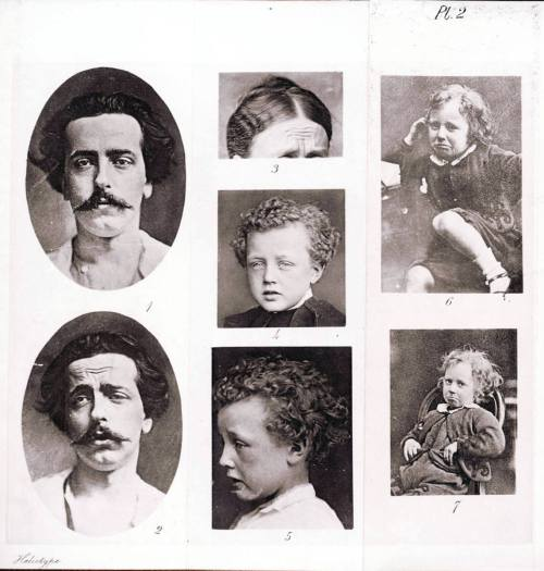 Photograph from Charles Darwin's pioneering studies of the emotions, which James referenced in developing his theory.