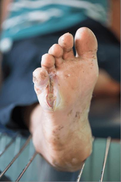 Diabetes Brampton  Brampton Foot Clinic