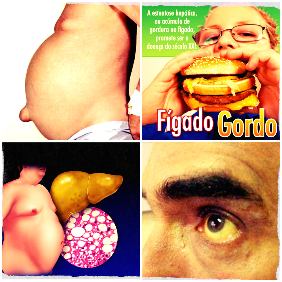 Sintomas da doena gordura no fgado  Brasil Blogado