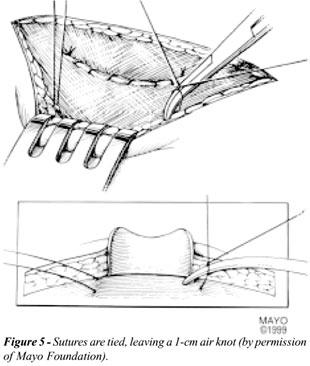Untitled Document [www.brazjurol.com.br]