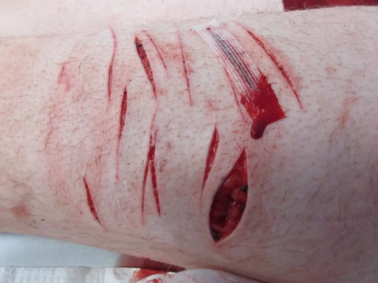surviving a knife attack