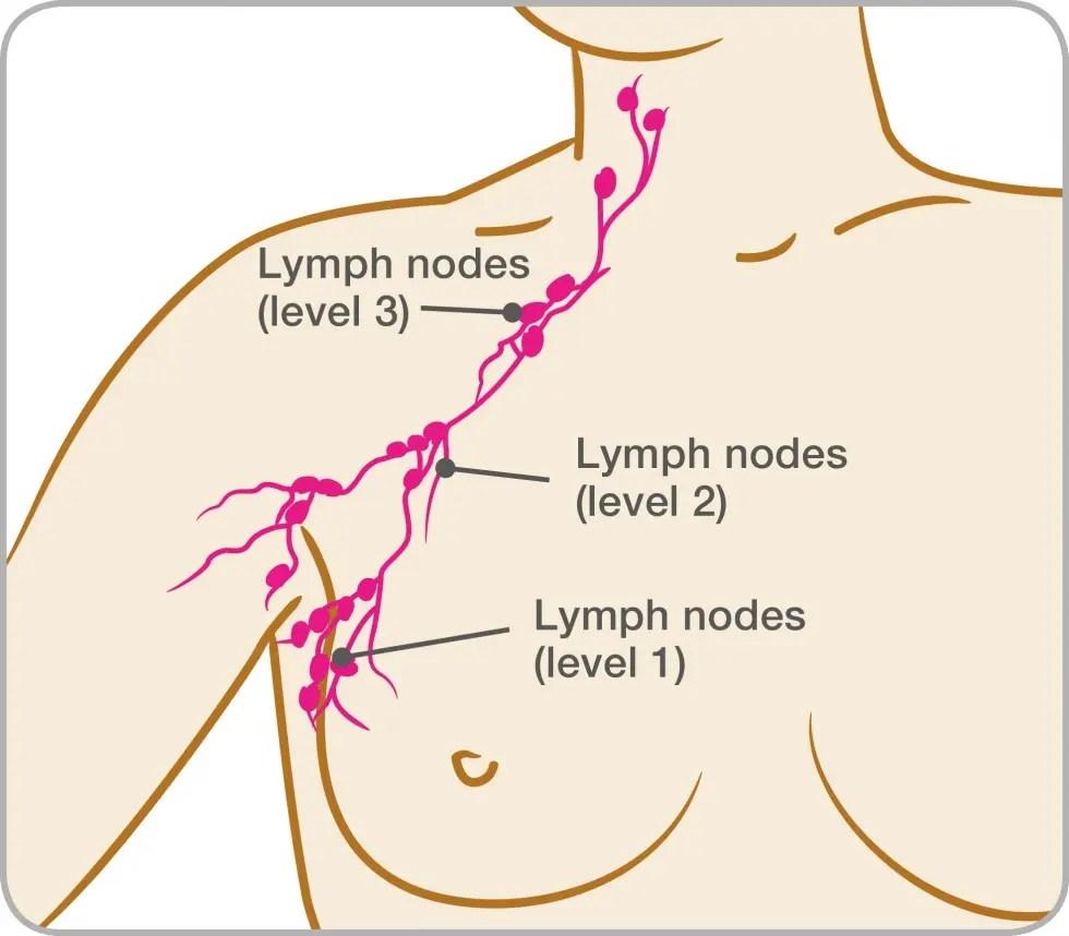 medium resolution of diagram of the lymph nodes