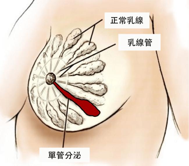 乳房分秘物