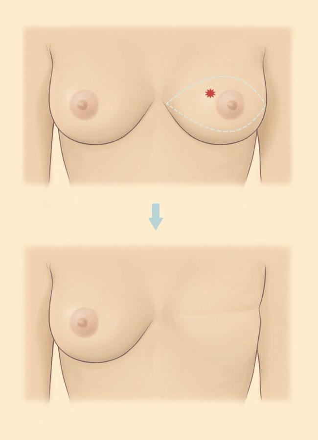 全乳房切除手術