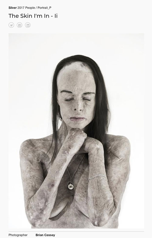 "Tokyo International Foto Awards (TIFA) - Silver Prize (Second) - Portrait - ""The Skin I'm In - II"" by Brian Cassey"