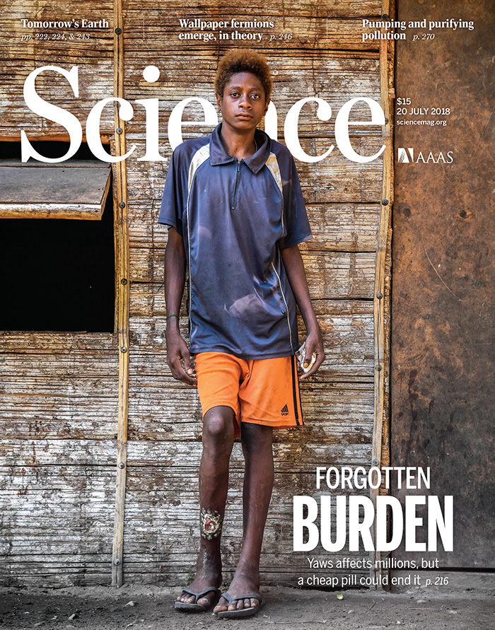 Science Journal - Yaws Disease story - Namatanai, Lihir Papua New Guines - images Brian Cassey