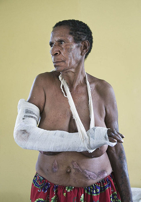 "Winner - Silver Award - TIFA - Tokyo International Foto Awards - Editorial Conflict - ""Victims of Sorcery - Dorcas"" - from the series ""Victims of Sorcery"" Dorcas Nunugi recovers from a 'Sorcery' attack in the Highlands of Papua New Guinea. Dorcas, accused of sorcery following a family death, was attacked with an axe and her arm almost severed. She received other axe wounds to her thigh and head. She was then tortured with iron bars heated red hot in a fire, leaving massive scars on her torso, breasts and legs. Somehow she escaped alive -many victims don't - their bodies dumped in the river or a convenient hole. Sorcery attacks have reached epidemic proportions in PNG. Image by Brian Cassey"