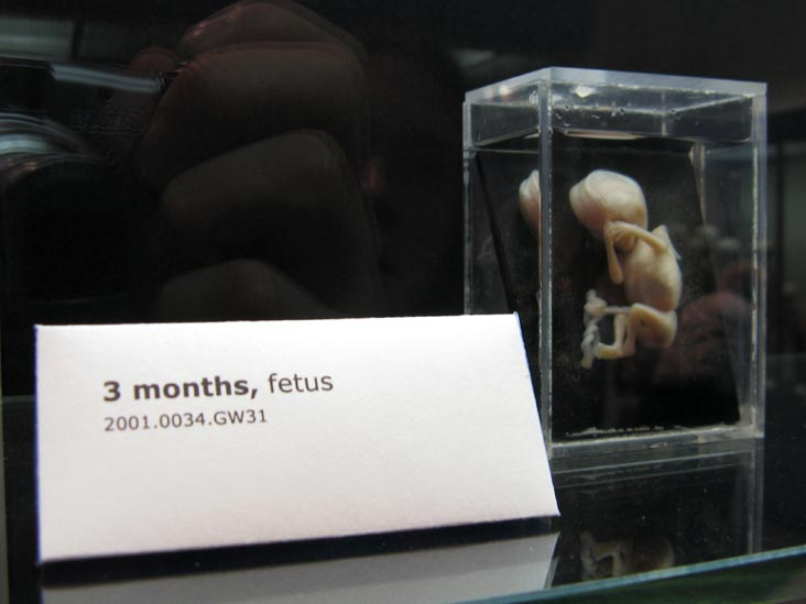 Fetus, 3 Months, From a Single Cell Exhibit, National Museum of Health and Medicine, Walter Reed Army Medical Center, 6900 Georgia Avenue NW, Washington, D.C.
