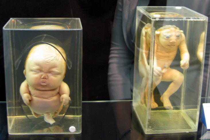 Achondroplastic Dwarfism and Anencephaly Specimens, From a Single Cell Exhibit, National Museum of Health and Medicine, Walter Reed Army Medical Center, 6900 Georgia Avenue NW, Washington, D.C.