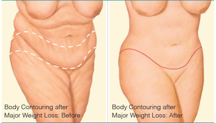 Body Contouring after Weight Loss - Brigham and Women's ...