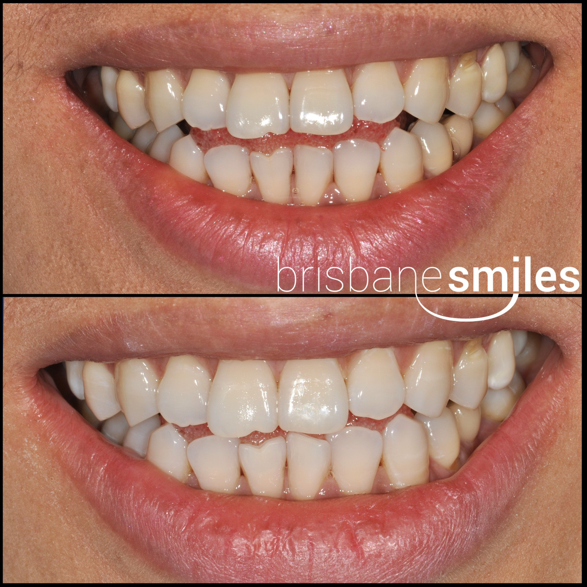 zoom teeth whitening photo