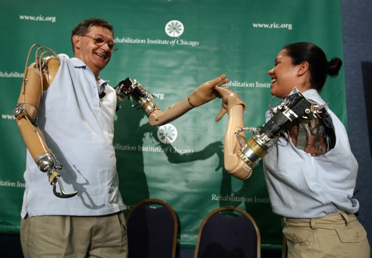"Claudia Mitchell (R), the first woman to receive a bionic arm, uses her new prosthetic arm to ""high five"" with the first bionic arm recipient Jesse Sullivan at a news conference in Washington September 14, 2006. REUTERS/Jason Reed"
