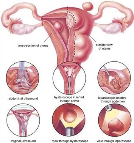 Hysteroscopic Myomectomy Surgery - OB/GYN - Brooklyn NYC