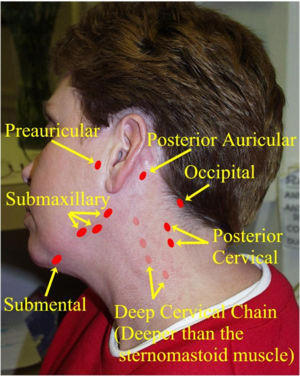 diagram lymph nodes on back of head where are the intermediates and transition states in this ear great installation wiring swollen neck chest hilum node