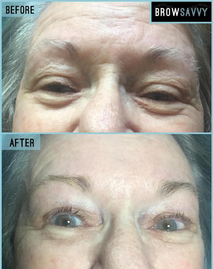 BEFORE AND AFTER 53