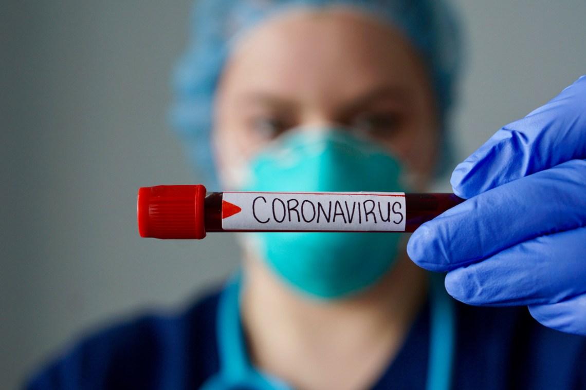 COVID-19 test results delay