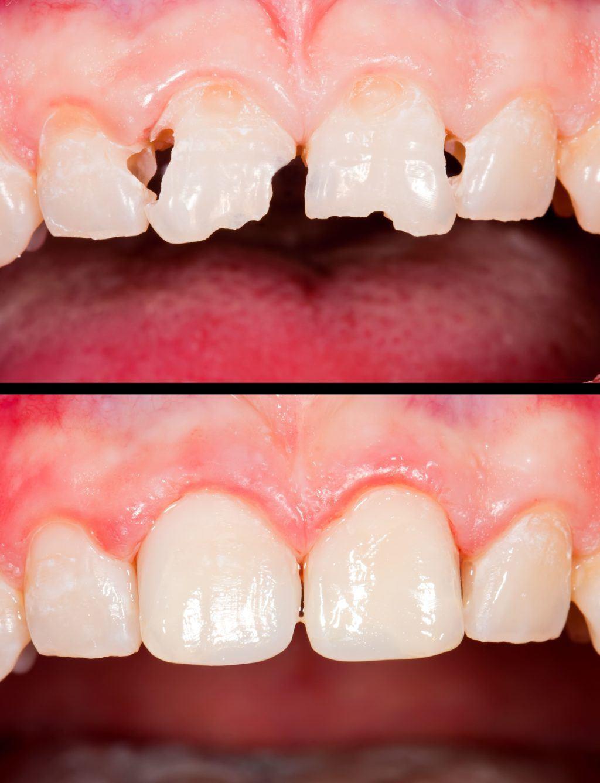 Tooth Bonding  Swindon  Brunel Dental Practice