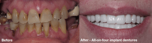 all on four implants before and after
