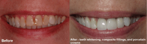 whitening and crowns before and after