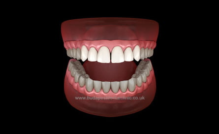 6 Veneers or Zirconium Crowns - Dental Aesthetic Packages - Budapest Dental Clinic Hungary