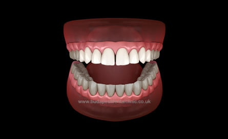 8 Veneers or Zirconium Crowns - Dental Aesthetic Packages - Budapest Dental Clinic Hungary