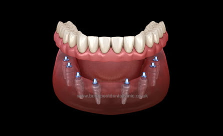 All-on-8 - Dental Implant Packages - Budapest Dental Clinic Hungary