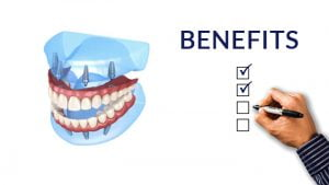 Dental Implant Benefits - Budapest Dental Clinic Blog
