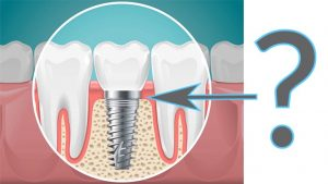 What is Dental Implant - Budapest Dental Clinic Blog