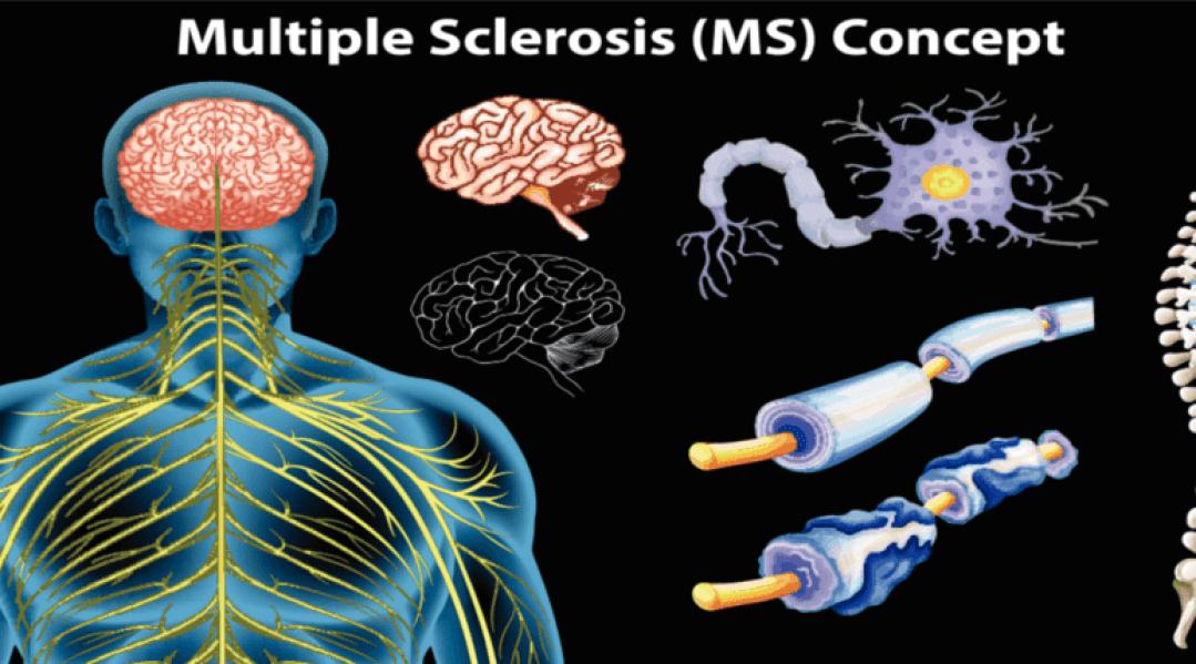 Multiple Sclerosis - Buffalo Occupational Therapy - Outpatient occupational therapy