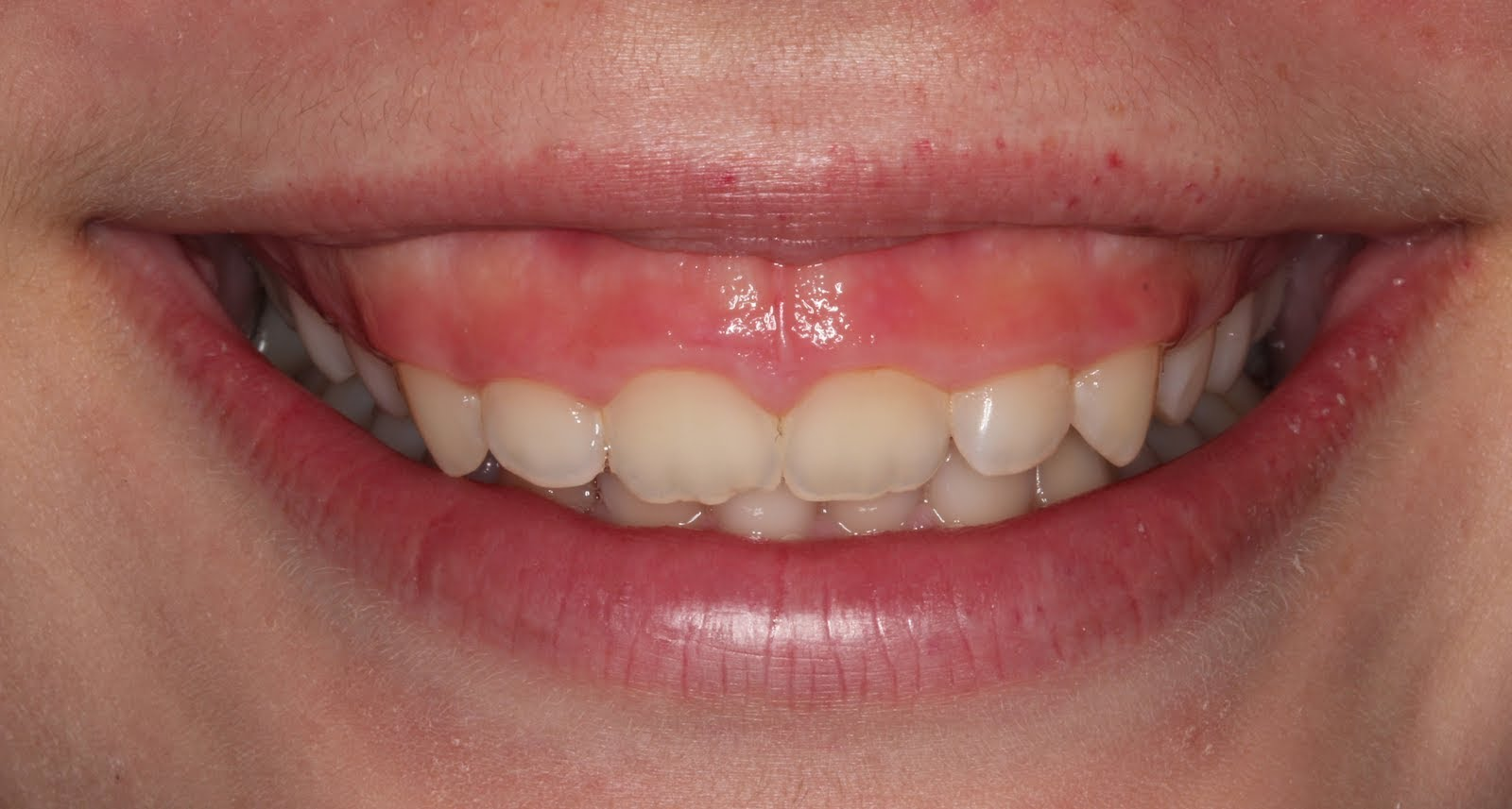 Botox For The Gummy Smile BuildMyBod Healthcare Pricing
