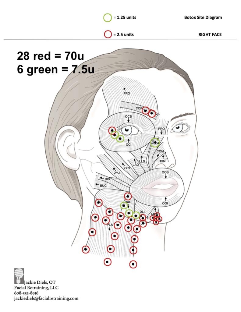 medium resolution of angelina jolie and bell s palsy