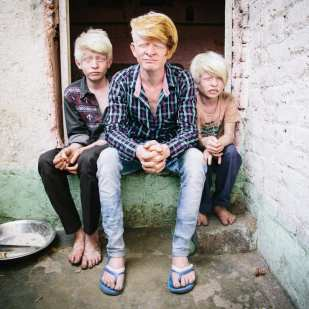 David is a documentary and portrait photographer/filmmaker. He focuses on human rights, maternal health and marginalized people. This photos of the Albino brothers is from a long term project on the denotified and criminal tribes of India. instagram @thedavidgoldmanphoto davidgoldmanphoto.com