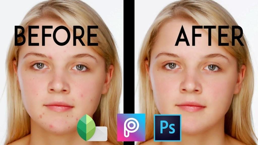 Cara Menghilangkan Jerawat pada Foto di Android