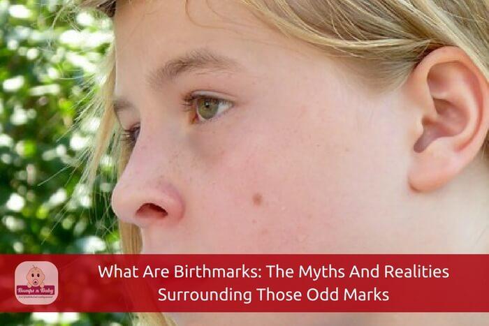 birthmarks in babies