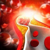 Dieta per colesterolo: quale pesce inserire nel proprio menù