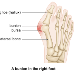Bones In Your Foot Diagram Firestorm Led Tailgate Light Bar Bunions Health Information Bupa Uk Image Showing A Bunion The Right