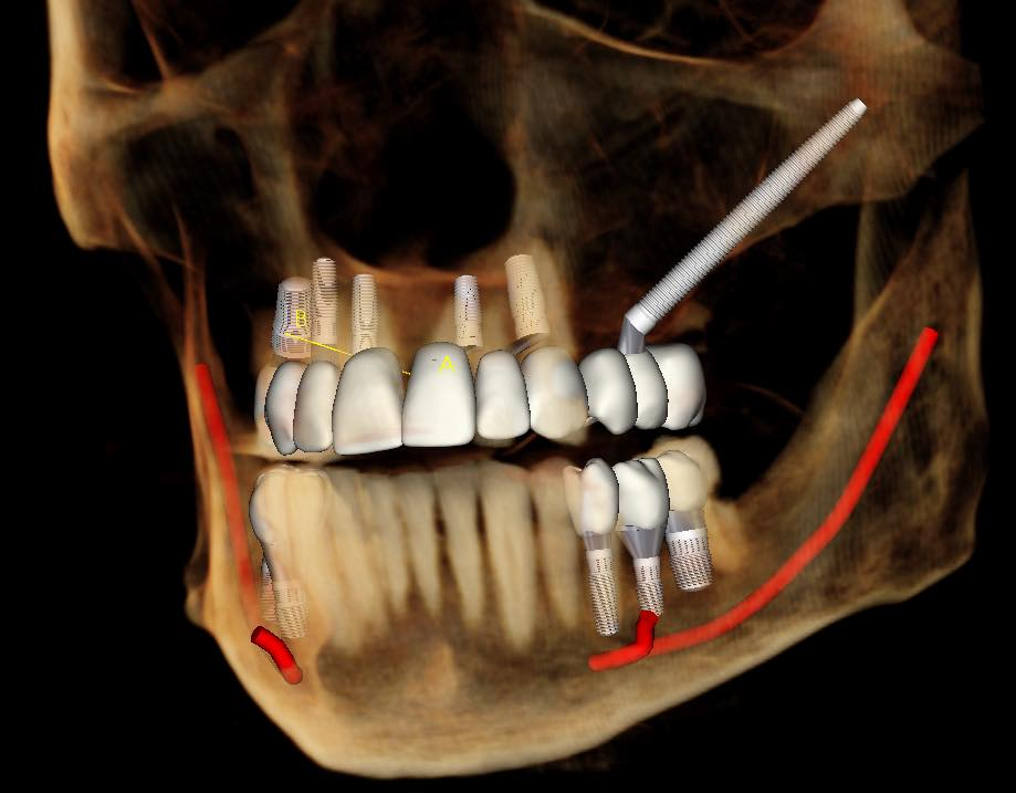 Video Zygomatic Immediate Load Dental Implant Planning