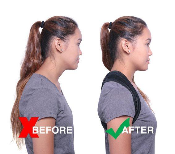 "Premium Unisex Posture Corrector Adjustable (24""-44"") by NAHASU Clavicle Support Brace - Orthopedist Designed Vest - Men and Women - Improve Bad Posture, Shoulder Alignment"